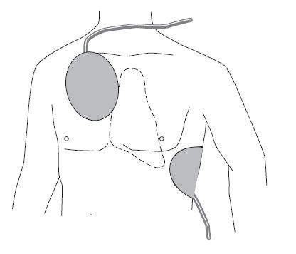Plaatsing FRED easy elektroden